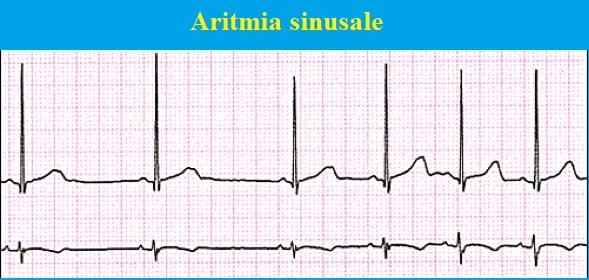 aritmia-sinusale