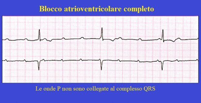 blocco atrio ventricolare completo