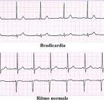 bradicardia, ECG