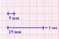 ecg-carta-millimetrata