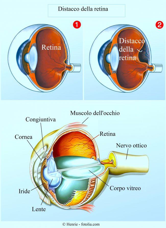 distacco-retina