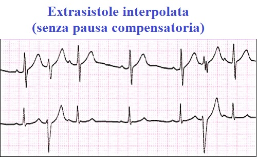 extrasistole ventricolare interpolata,ECG