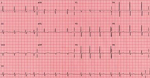 fibrillazione atriale ECG