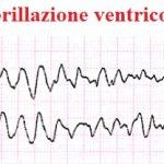 fibrillazione ventricolare, ECG