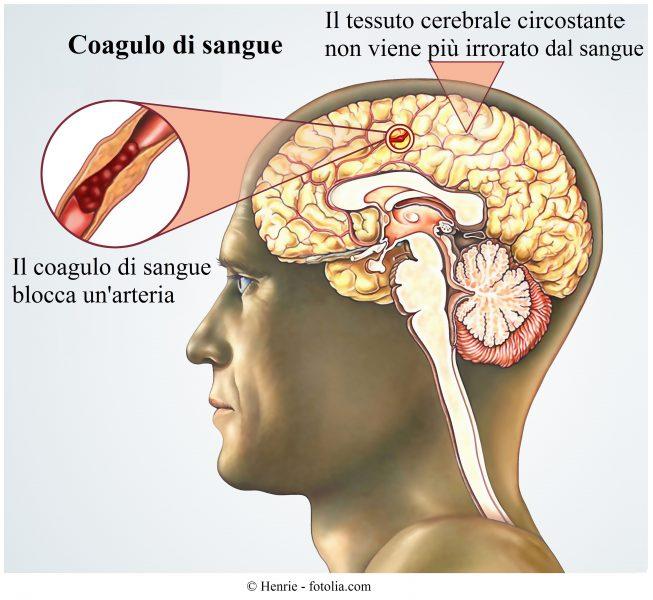 ictus-ischemico-blocco-arteria