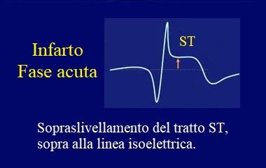 infarto acuto ecg ST