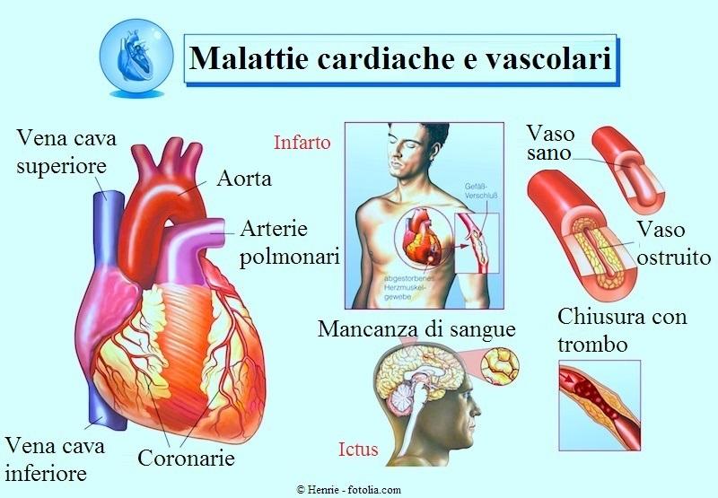 infarto-ictus-trombo