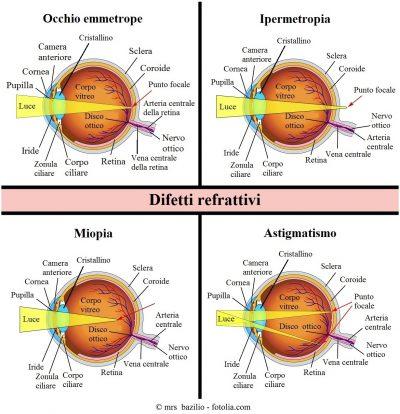 ipermetropia-miopia-astigmatismo.