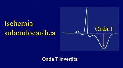 ischemia subendocardica, ecg, onda T