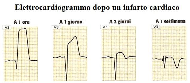 onda-q, infarto, variazioni, ECG