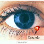 orzaiolo-occhio