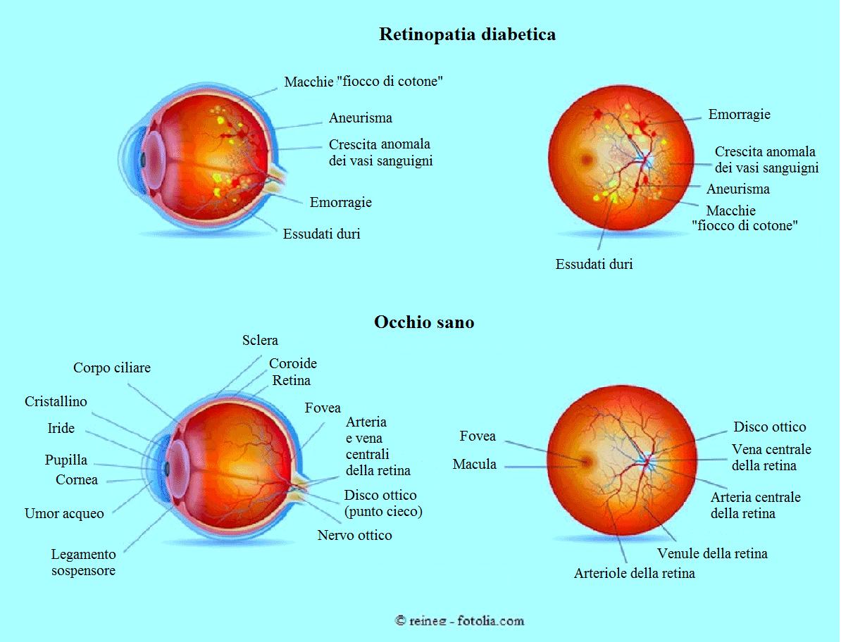 retinopatia-diebetica
