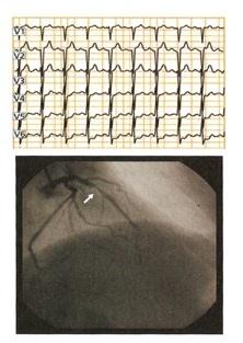 stenosi arteria coronaria-discendente anteriore sinistra