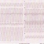 tachicardia ventricolare, ecg