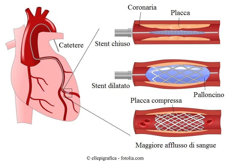 Angioplastica-stent-coronaria