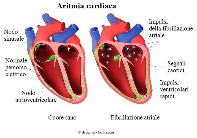 Aritmia-cardiaca