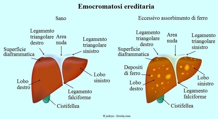 Emocromatosi-ereditaria-ferro