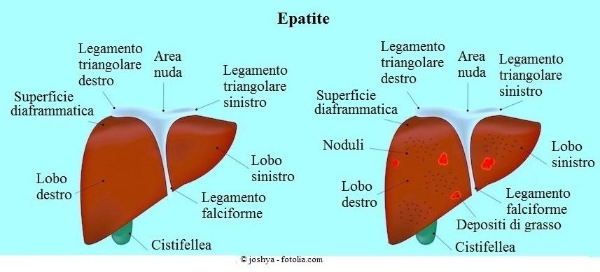 Epatite-fegato