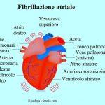 Fibrillazione-atriale