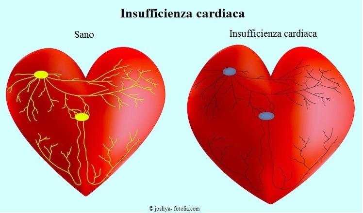Insufficienza-cardiaca-cuore