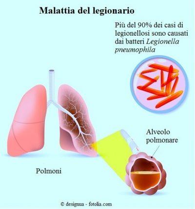 Malattia-del-legionario