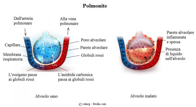 Polmonite-alveoli-infiammazione