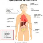 Segnali-premoitori-infarto