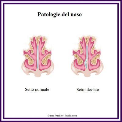 Setto-nasale-deviato