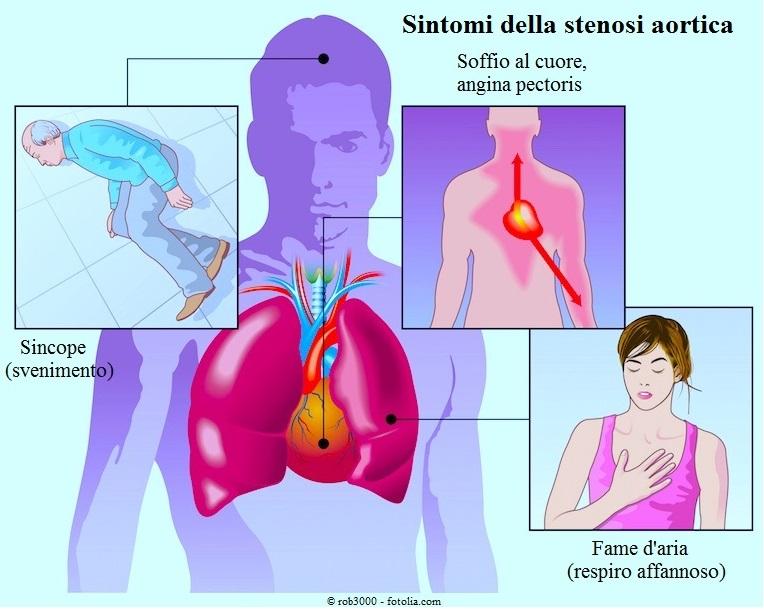 Sintomi-stenosi-aortica