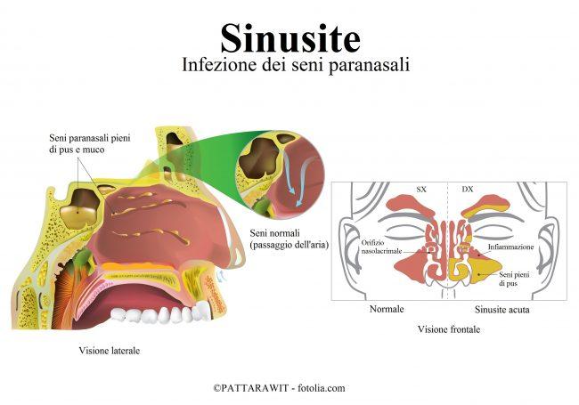 Sinusite-infezione-pus-muco