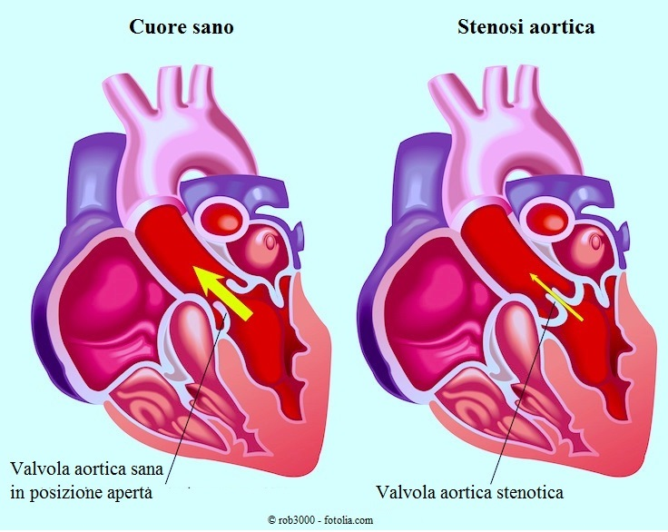 Stenosi-aortica