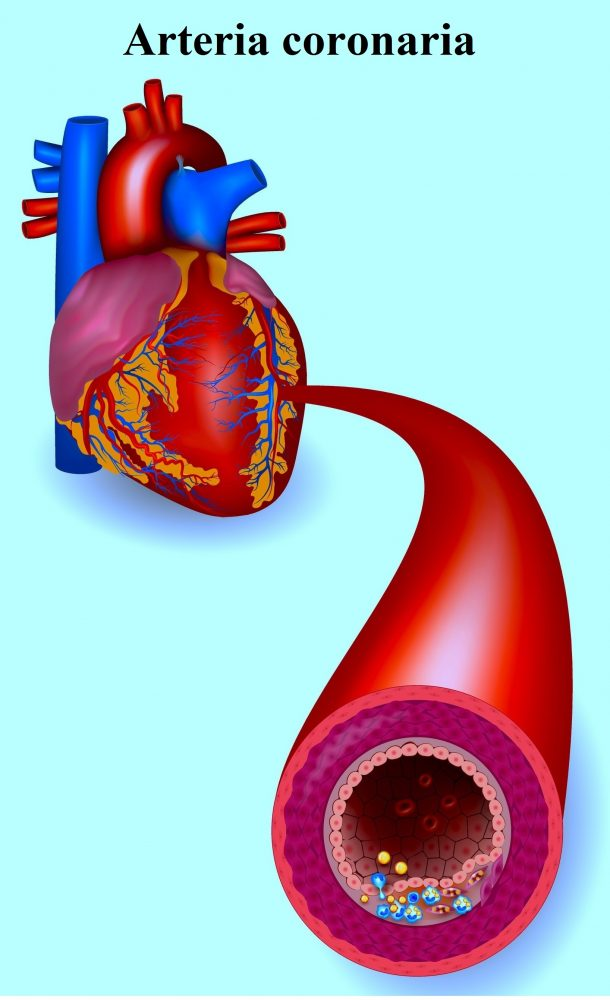arteria-coronaria