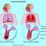 asma-bronchiale
