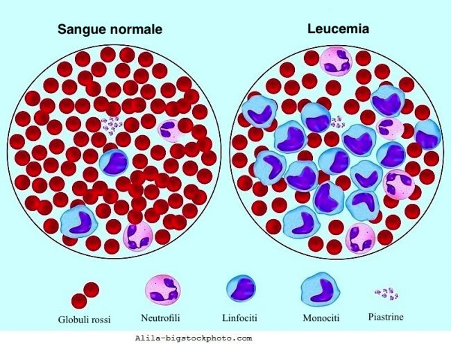 cellule del sangue, leucemia