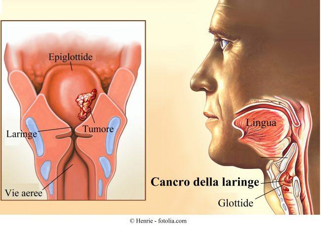 Tumore alla laringe