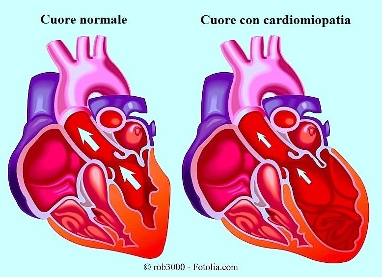 cardiopatia-dilatativa