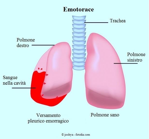emotorace-versamento-pleurico-polmoni