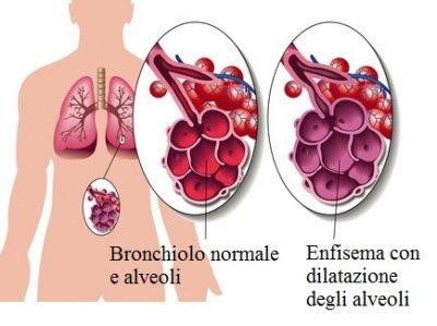 Enfisema polmonare