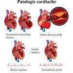 infarto-aneurisma-aritmia