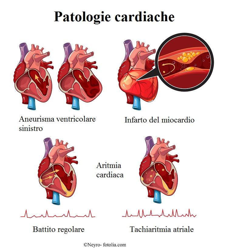 Infarto del miocardio sintomi e cause donne e uomini for Dolore addome sinistro alto