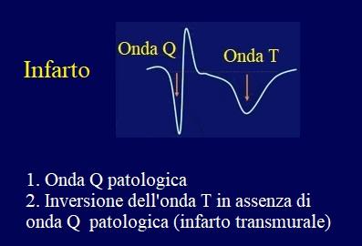 infarto, ecg-onda Q, T