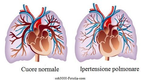 ipertensione-polmonare
