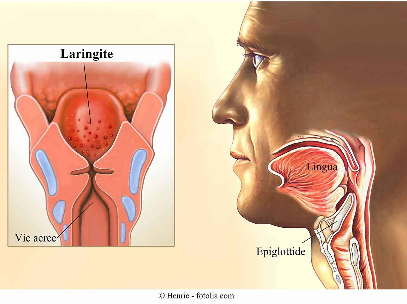 laringite-infiammazione