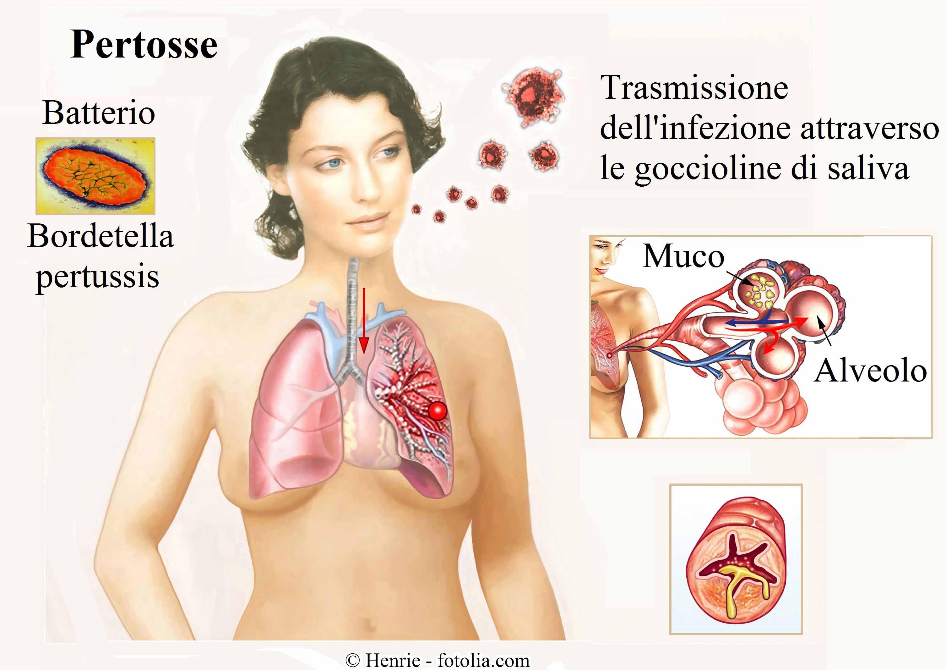 pertosse-batterio-trasmissione-muco
