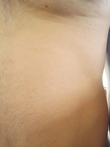 puntini rossi sulla pelle