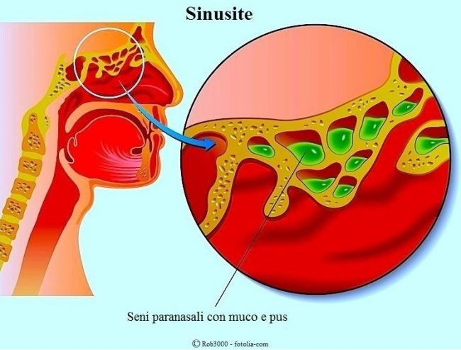 sinusite-muco-pus