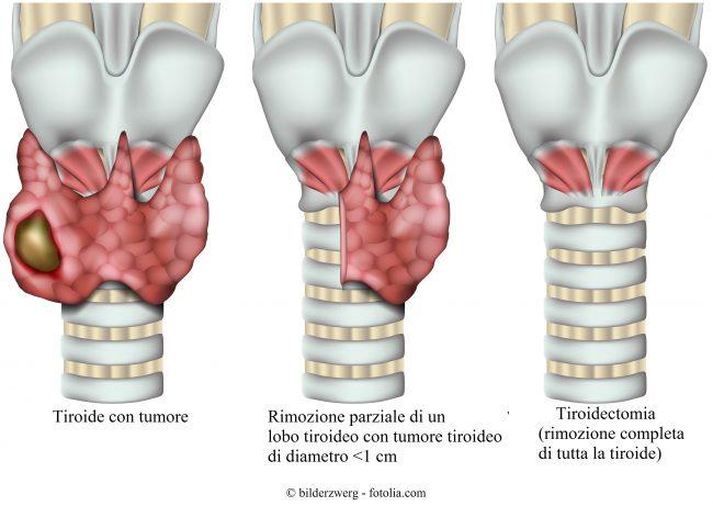 tiroidectomia-intervento-tiroide