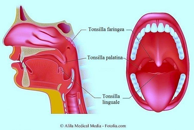 tonsilla-palatina-faringea-linguale
