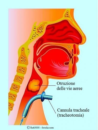 tracheotomia-ostruzione-vie-aeree
