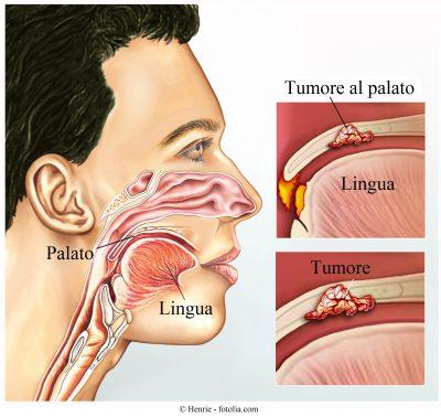 tumore-gola-palato